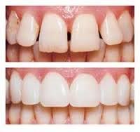 teeth before after   Lygon Family Dental Brunswick