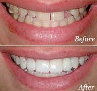 crown and bridge   Lygon Family Dental Brunswick