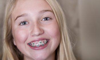 invalisign 1   Lygon Family Dental Brunswick