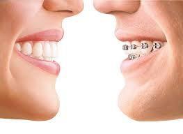 invisalign braces | Lygon Family Dental Brunswick