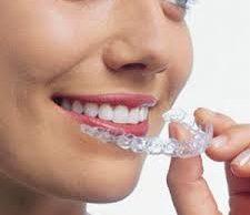 invisalign | Lygon Family Dental Brunswick