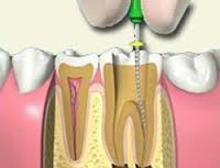 Root Canal Treatment Failure Causes Symptoms