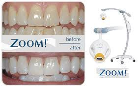 zoom whitening before after | Lygon Family Dental Brunswick