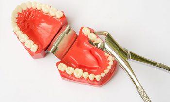 wisdom teeth 1   Lygon Family Dental Brunswick