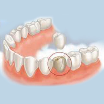 Dental Crown | Lygon Family Dental Brunswick